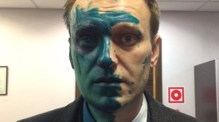 Навальный заявил, что может ослепнуть на один глаз из-за зеленки