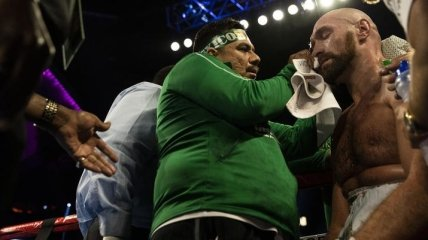 """""""Самое ужасное рассечение из всех"""": Катмен Фьюри рассказал о травме боксера"""