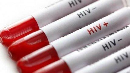 """Система """"ВИЧ-инфекция в Украине"""" заработает в тюрьмах"""