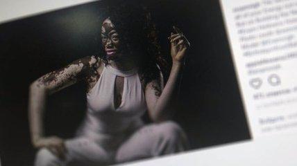 Медсестра из Ганы, страдающая витилиго, стала моделью (Фото)