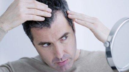 Біологи відкрили новий метод відновлення волосся у чоловіків