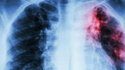 В Украине зарегистрировано инновационное лекарство против туберкулеза