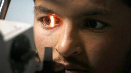 В Google знают, как предсказывать сердечные заболевания, просто взглянув в глаза