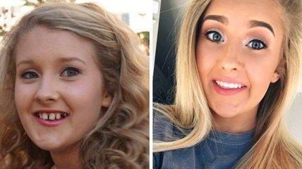 До и после: как брекеты могут изменить вашу внешность (Фото)