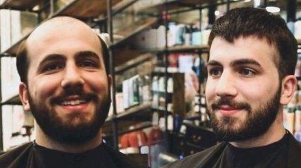 Как разительно меняется внешность мужчины, избавившегося от лысины (Фото)