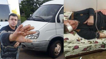 Водитель избил пассажира