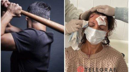 В ботсаду имени Гришко женщину шесть раз ударили битой по голове