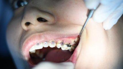Почему от холодной еды и напитков болят зубы? Ученые выяснили причину