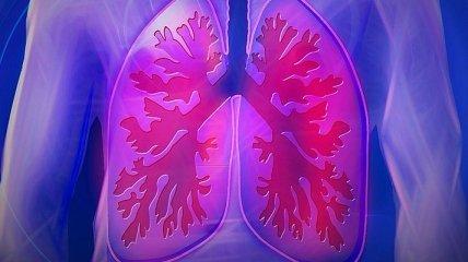 Как распознать рак легких: тревожные симптомы