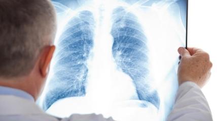 Рентген несет значительно меньшую радиационную угрозу.
