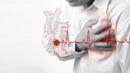 Доктора назвали главные признаки, которые сигнализируют скорый инфаркт