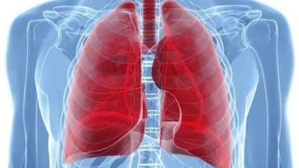 Как начинается рак легких: ранние симптомы