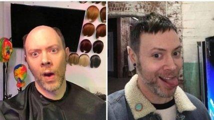 До і після: чоловіки, які позбулися лисини (Фото)