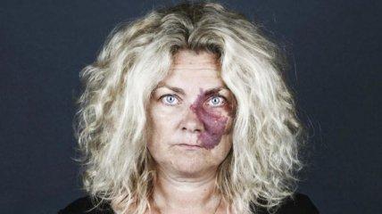 Портреты людей с родимыми пятнами, заставляющие увидеть человека, а не его родинки (Фото)