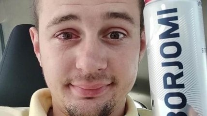 Пробка из-под минералки выстрелила парню в глаз: жертва ЧП записал эксперимент на видео