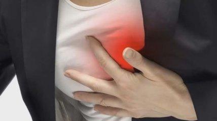 Симптомы, которые ведут за собой сердечный приступ