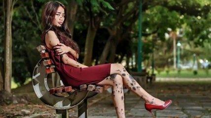 Необычная красота: девушка с родинками примет участие в конкурсе красоты (Фото)