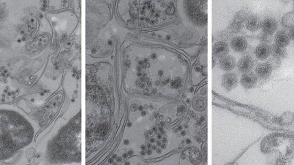 Американские ученые обнаружили неизвестный ранее вирусный штамм