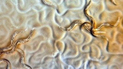 """Можно """"щелкнуть переключатель"""": найден фермент, позволяющий паразитам обходиться без кислорода"""