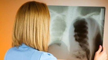 Правительство Украины взялось за профилактику туберкулеза