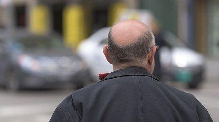 Виновата лысина? Какая категория мужчин чаще страдает от рака простаты