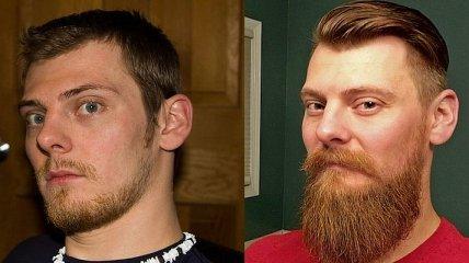 У тебя есть борода? Значит ты красавчик: парни, которые очень изменились (Фото)