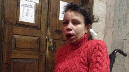Татьяна Черновол поделилась своим мнением о том, почему ее избили