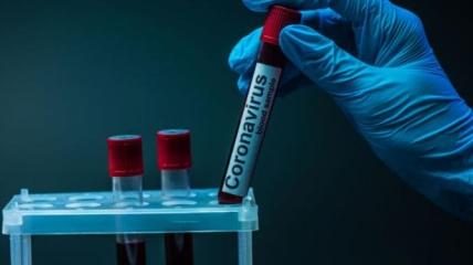 Коронавірус в Україні 3 вересня