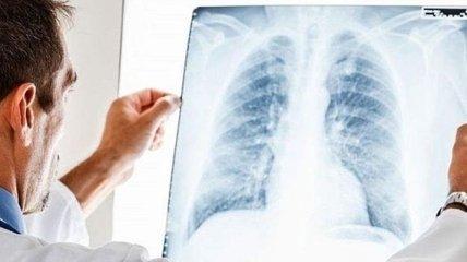 В Ивано-Франковске растет число больных пневмониями
