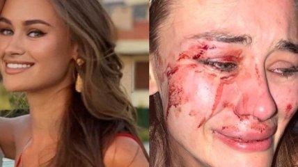 Избили в Турции: украинскую модель Дарью Кирилюк осудили за клевету