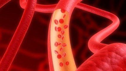 Эффективные средства для повышения гемоглобина