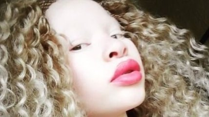 Вопреки издевательствам: 20-летняя африканка-альбинос начала модельную карьеру (Фото)