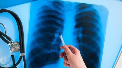 В мире возросла смертность от туберкулеза