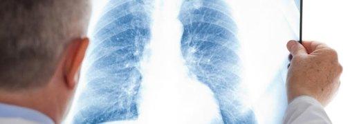 Рентген несе значно меншу радіаційну загрозу.